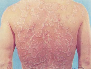 银屑病的发病原因