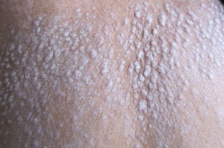 是什么原因导致牛皮癣病发呢