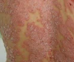 牛皮癣患者的病情跟季节的关系