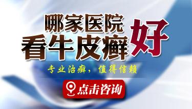郑州市银屑病研究所是公立的吗