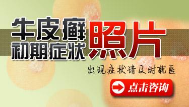 牛皮癣初期长什么样.jpg