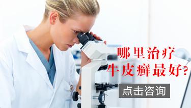 郑州治疗牛皮癣
