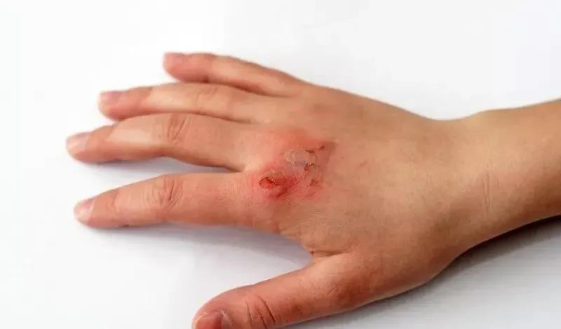 手部牛皮癣是否能治痊愈