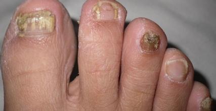 银屑病患者的指甲有何特点?