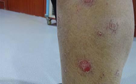 皮肤上牛皮癣的症状是什么