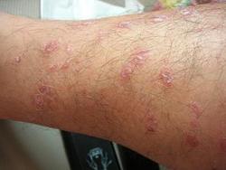 哪些是手臂银消病患者日常该注意的问题