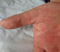 手臂牛皮癣护理七原则