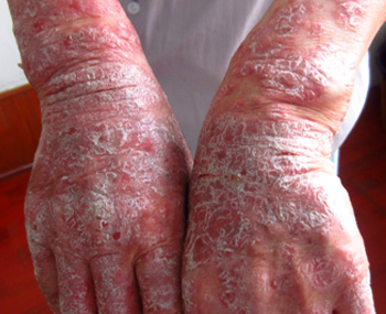 手部牛皮癣怎么治疗