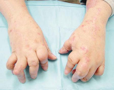 手部牛皮癣治疗