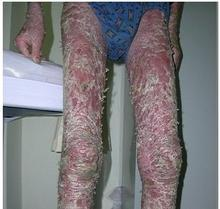 腿部牛皮癣的病因