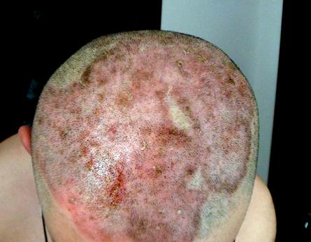 头部牛皮癣的症状是什么