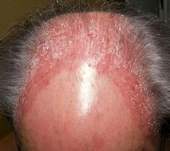 头皮银屑病的症状
