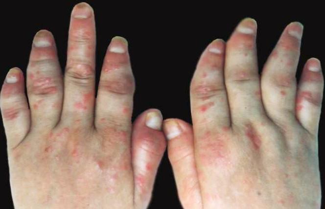 关节型牛皮癣的症状有哪些