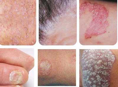 红皮型银屑病的症状表现