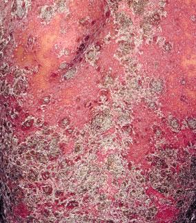 红皮病型牛皮癣要注意什么