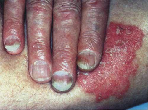 脓包型银屑病有哪些症状