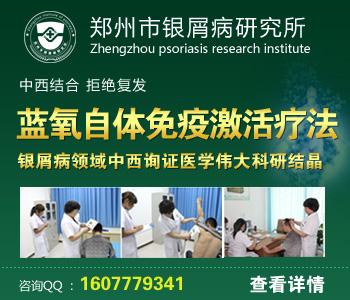 鹤壁牛皮癣医院