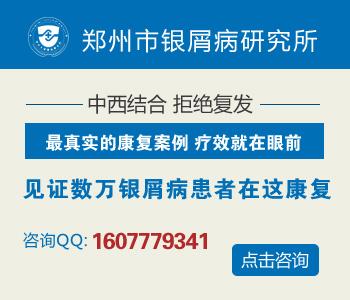 濮阳市哪个地方看银病好
