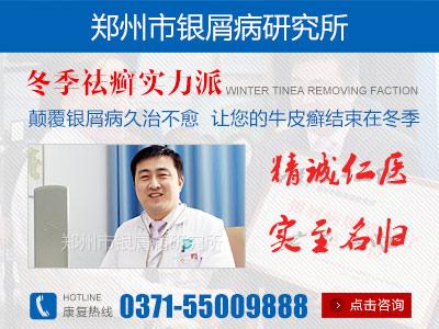 郑州哪个医院治疗牛皮癣最好