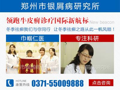 郑州市银屑病研究所在哪