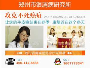 郑州治疗银屑病的医院