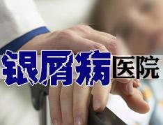 郑州银屑病哪里治疗最好